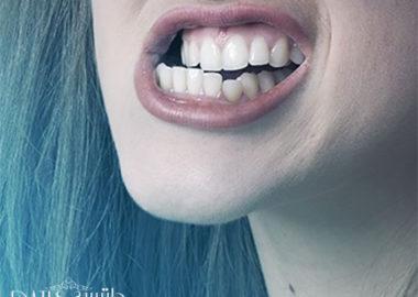 دندان قروچه در خواب چیست و چه درمانی برای آن وجود دارد؟