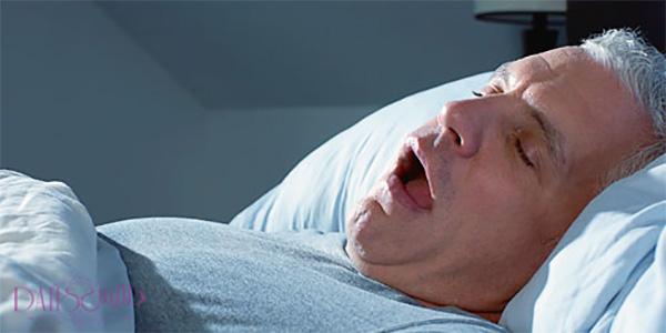 آپنه خواب علت خستگی