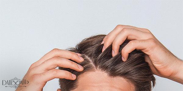 ریزش مو با خواب ارتباط پیدا می کند